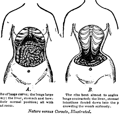the Ugly Truth about Waist Trainers